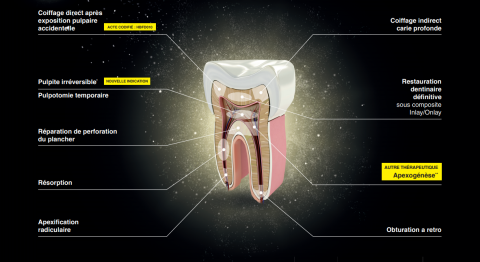 biodentine indications